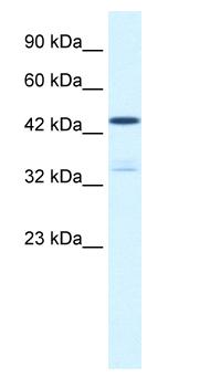 Western blot - KCNAB3 antibody (ab66625)
