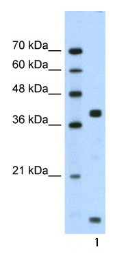 Western blot - Dysadherin antibody (ab66627)