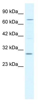 Western blot - KCNIP1 antibody (ab66628)