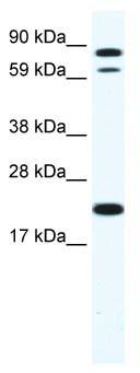 Western blot - Zinc finger protein 287  antibody (ab66629)