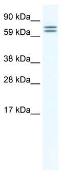 Western blot - CES6 antibody (ab66631)