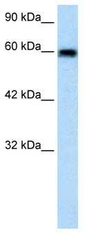 Western blot - BEST4 antibody (ab66632)