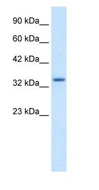 Western blot - ZNF134 antibody (ab66646)