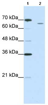 Western blot - CPSF73 antibody (ab66671)