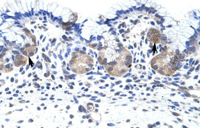 Immunohistochemistry (Formalin/PFA-fixed paraffin-embedded sections) - UPF3B/RENT3B antibody (ab66753)