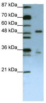 Western blot - UPF3B/RENT3B antibody (ab66753)