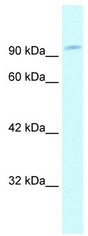 Western blot - GRIP1 antibody (ab66755)
