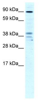 Western blot - ZC3H7B antibody (ab66758)