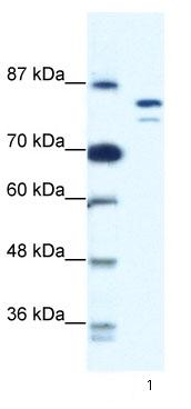 Western blot - MCM8 antibody (ab66761)