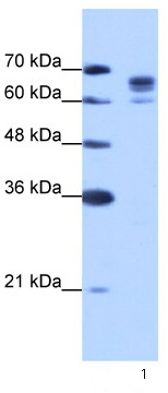 Western blot - DDX17 antibody (ab66764)