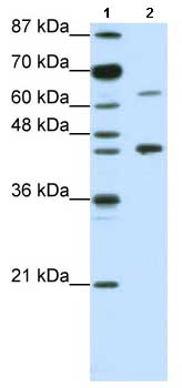Western blot - Retinoic Acid Receptor alpha antibody (ab66777)