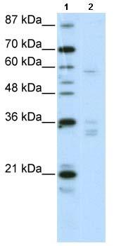 Western blot - ZNF440 antibody (ab66849)