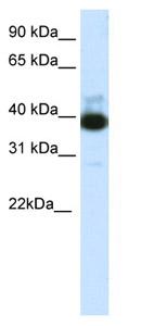 Western blot - TTC19 antibody (ab66884)