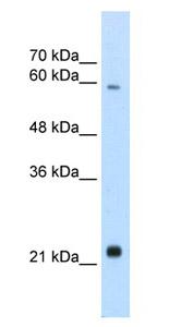 Western blot - RBPSUHL antibody (ab66886)