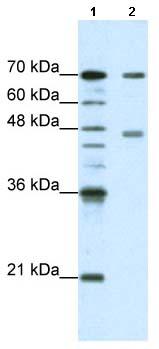 Western blot - PABPC4 antibody (ab66897)