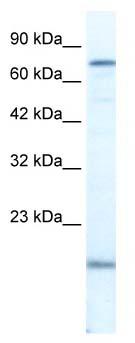 Western blot - PGBD3 antibody (ab66903)