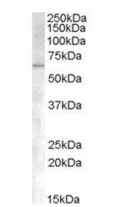 Western blot - Activin Receptor Type IA antibody (ab66924)