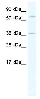 Western blot - Mohawk homeobox antibody (ab66939)