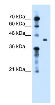 Western blot - TGFBI antibody (ab66957)
