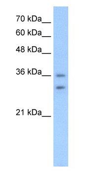 Western blot - OR6C70 antibody (ab66958)