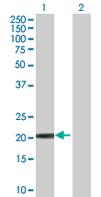 Western blot - calcyphosine antibody (ab66966)