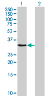Western blot - MMS19 like protein antibody (ab66967)