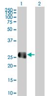 Western blot - EFCBP2 antibody (ab66972)