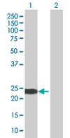 Western blot - GSTA4 antibody (ab66974)