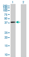 Western blot - BNIPL antibody (ab66975)