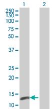 Western blot - NT5C antibody (ab66977)