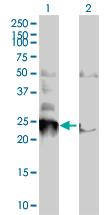 Western blot - NIP1 antibody (ab66979)