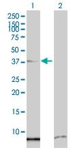 Western blot - SSBP2 antibody (ab66986)