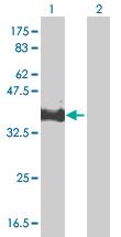 Western blot - MPPED1 antibody (ab66988)
