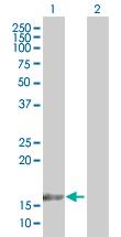 Western blot - TAF12 antibody (ab66990)