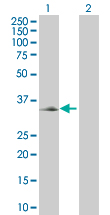 Western blot - Cer1 antibody (ab66992)