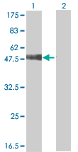 Western blot - CLK1 antibody (ab66994)