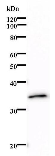 Western blot - LMAN2 antibody [264C4a] (ab67000)