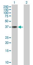 Western blot - OCIAD1 antibody (ab67010)