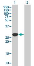 Western blot - EXOSC1 antibody (ab67011)