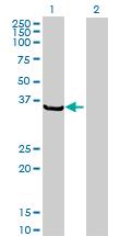 Western blot - Regucalcin antibody (ab67014)