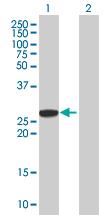 Western blot - AGPAT1 antibody (ab67018)