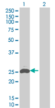 Western blot - SECTM1 antibody (ab67039)