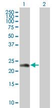 Western blot - ZNF26 antibody (ab67055)