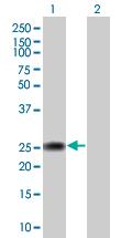 Western blot - CRYBA2 antibody (ab67056)