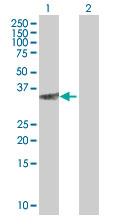 Western blot - FLJ22662 antibody (ab67060)