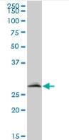 Western blot - VAPB antibody (ab67062)