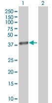 Western blot - AKR1B1 antibody (ab67063)