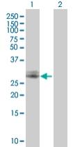 Western blot - CHMP2A antibody (ab67064)