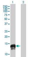 Western blot - FXYD3 antibody (ab67067)