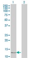 Western blot - FABP6 antibody (ab67070)